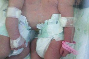 Nacen siamesas unidas por el abdomen en el hospital Cabral y Báez