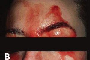 Una joven italiana suda sangre por cara y manos